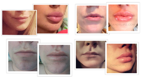 lip enlargement without surgery