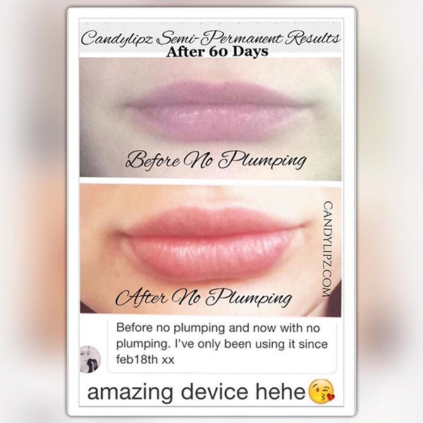 how to get bigger lips permanently