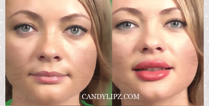 How to Lip Plumping – CandyLipz Official Store