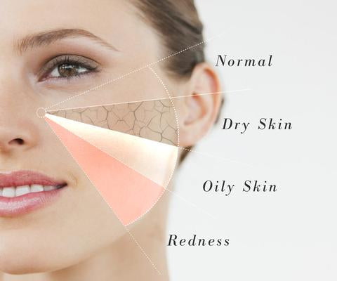 Know your skin/ Guide to diagnose your skin type