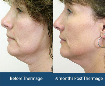 What are Ultherapy and Thermage and how are they different?