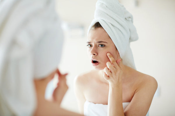 The Real Reason We Get Adult Acne + Easy, Natural Ways To Prevent It