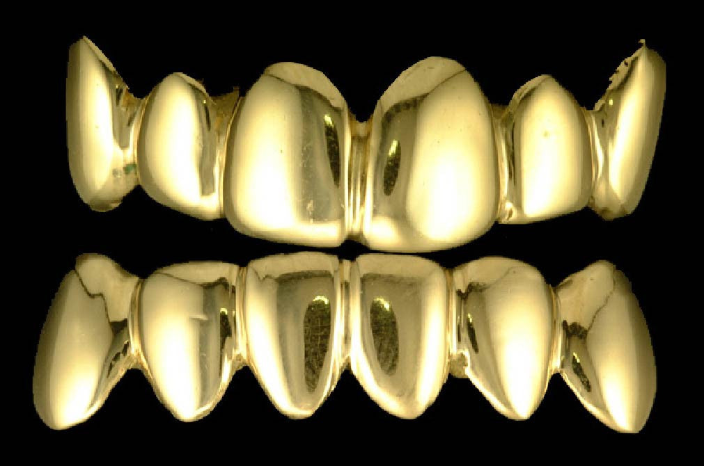 Gold Teeth Top and bottom grillz sets 12 Teeth – Chi Grillz