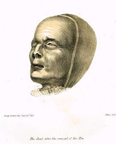 Archaeologia's Antiquity - THE HEAD AFTER THE REMOVAL OF THE TOW - Engraving - 1852