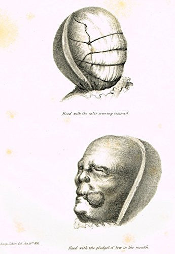 "Archaeologia's Antiquity - ""HEAD WITH THE PLEDGET OF TOW IN THE MOUTH"" - Engraving - 1852"