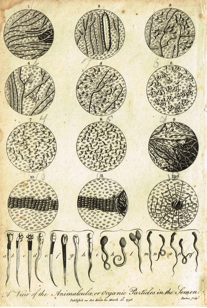"Antique Medical Print - ""VIEW OF THE ANIMALCULAE PARTICLES IN THE SEMEN"" - Copper Engraving - 1796"