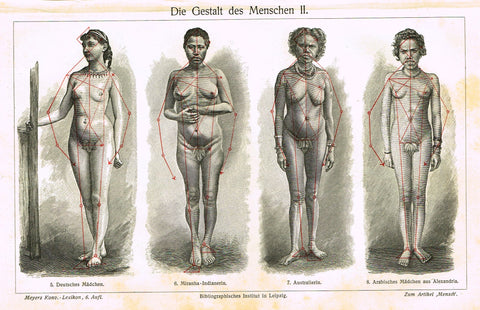 "Meyers Lexicon - ""DIE GESTALT DES MENSCHEN I - BODIES WOMEN (MEDICAL)"" - Lithograph - 1913"