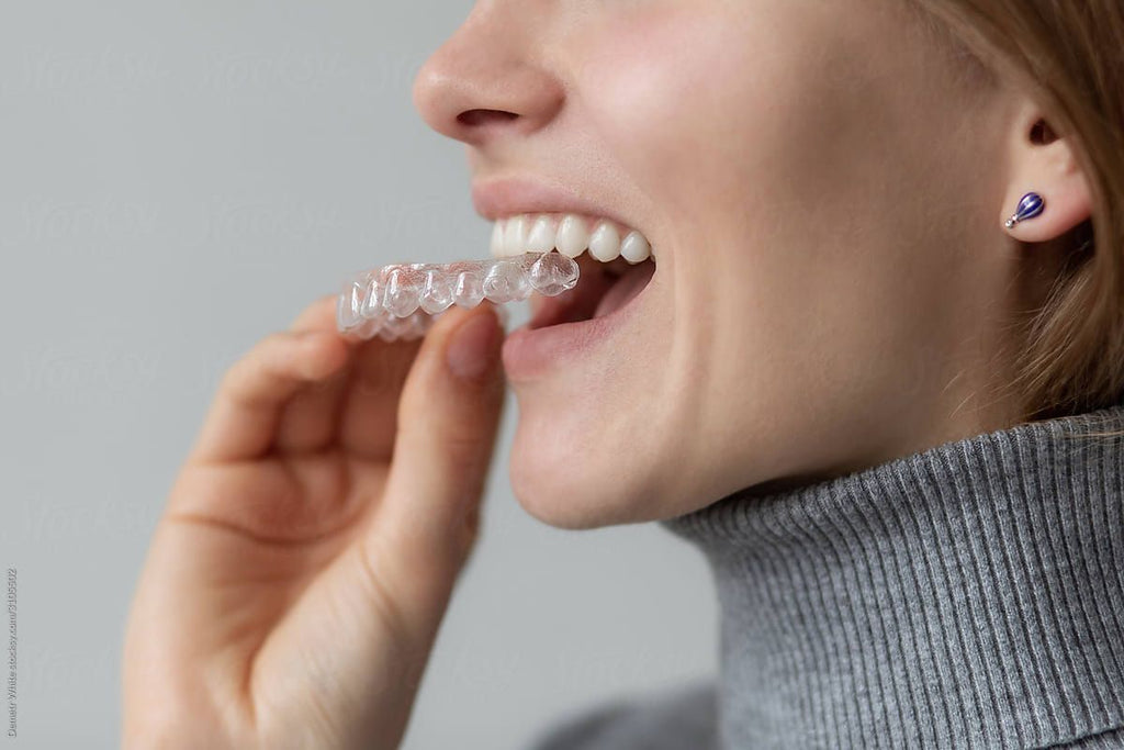 How Much Does Teeth Whitening Cost?