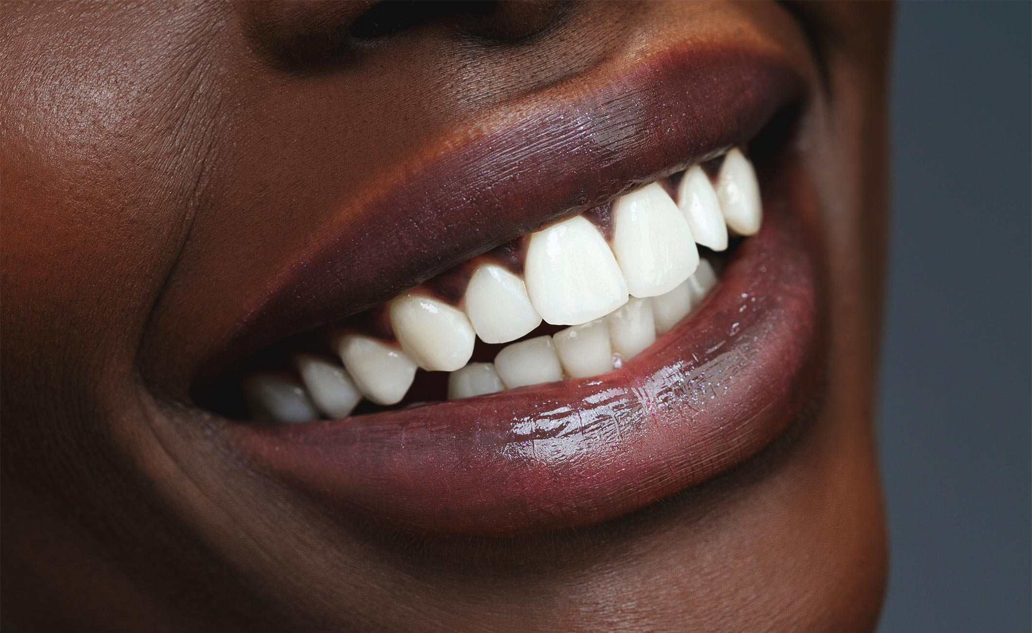 close up of a woman's white teeth