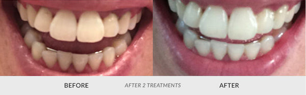 teeth whitening customer 1