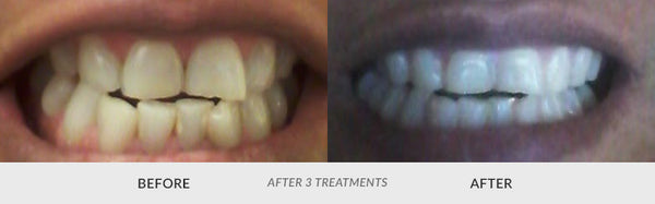 teeth whitening customer 3