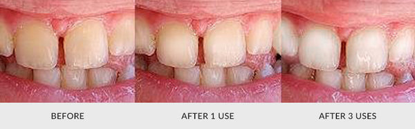 teeth whitening customer 2