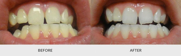 teeth whitening before and after 4