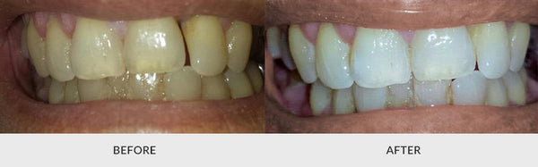 teeth whitening before and after 2