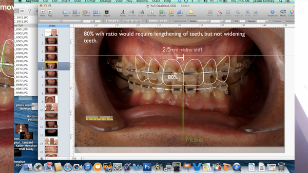 Dental Clinical and Portrait Photography: Documentation to Presentation Free Introduction Video
