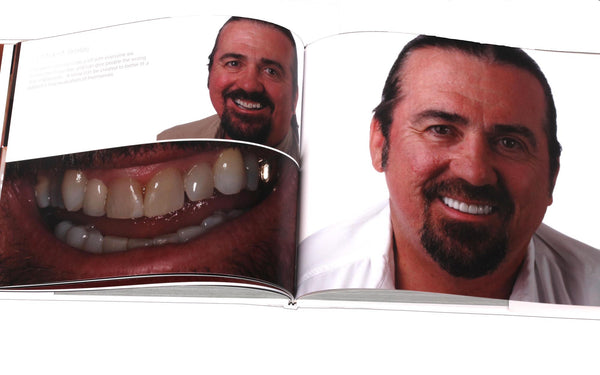 Before and After book for dentists