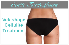 Velashape II Cellulite Treatments