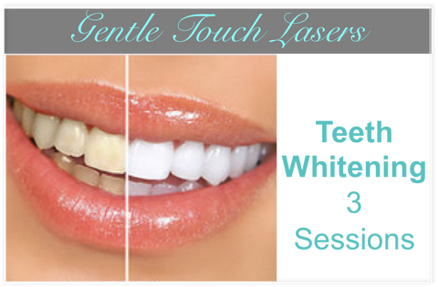 New Client Special - Teeth Whitening