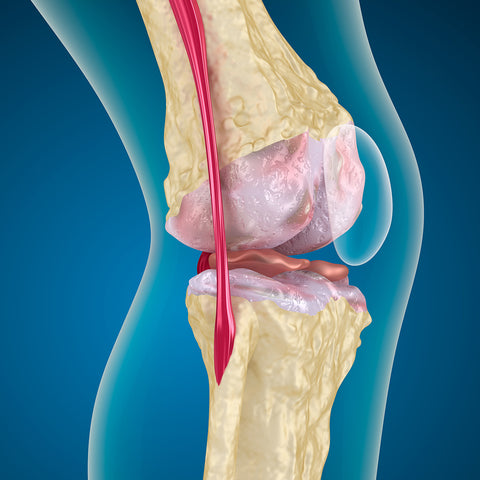 hip joint pain
