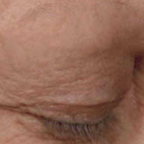 Image: Showing the difference before and after using beautifeye on eyelids