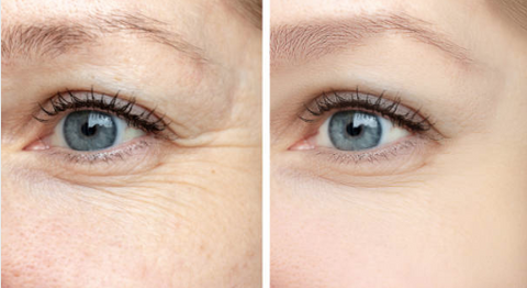 Image: Before and after of using beautifye on crow's feet (wrinkles in the corner of eye)