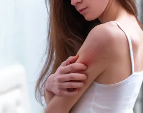 Image: Girl wearing a white tank top scratching her sore red arm