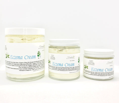 Eczema cream, Psoriasis lotion, Dry skin cream, organic ingredients, Cocoa butter, burdock, plantain, calendula, Coconut oil, organic lotion