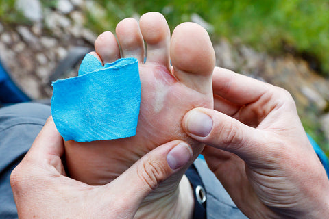 Treating Your Foot Blisters