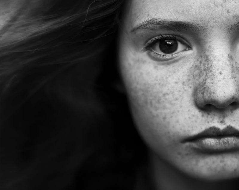 young woman face freckles anokha