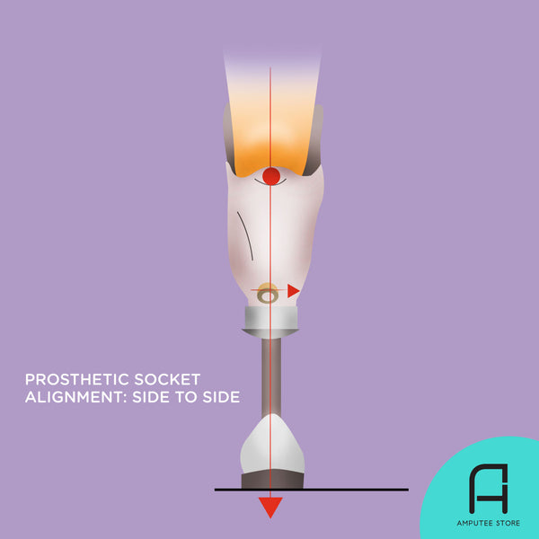 An illustrated below-knee amputee with prosthesis shows how to determine correct socket alignment when inspected from side to side.