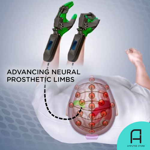 Advancing neural prosthetic limbs.