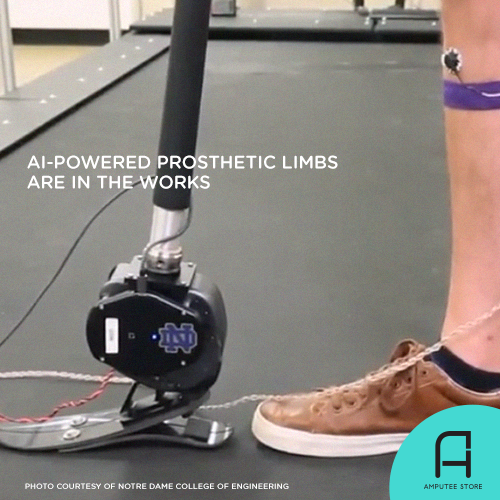 Engineers at the University of Notre Dame are working on an AI-powered prosthetic limb.