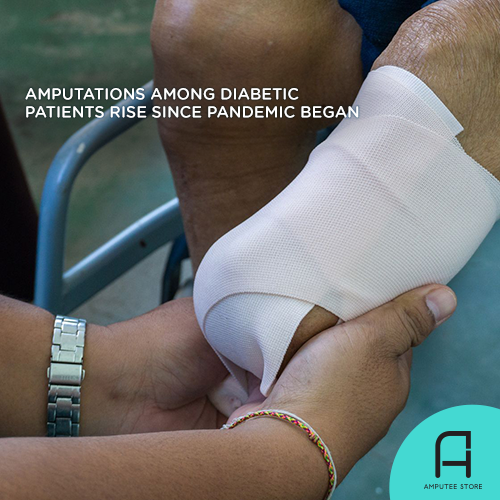 More diabetic patients have undergone amputation surgery since the pandemic began.