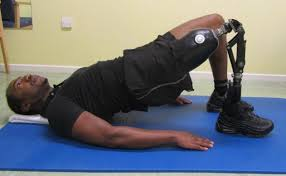 Lower-limb amputee performing a bridge exercise with his prosthetic leg.