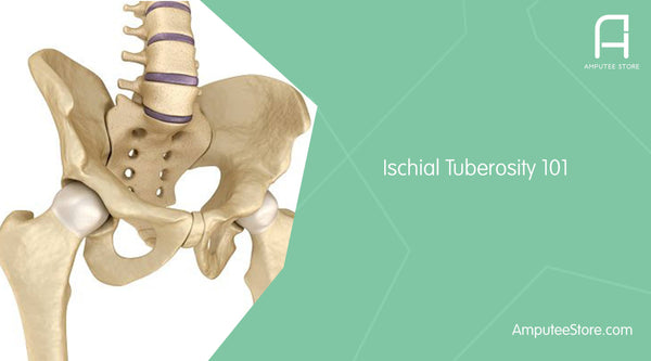 The ischial tuberosity helps support your body weight when wearing a prosthesis and can become inflamed from overuse.