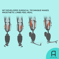 Surgical technique developed by MIT makes prosthetic limbs feel real.