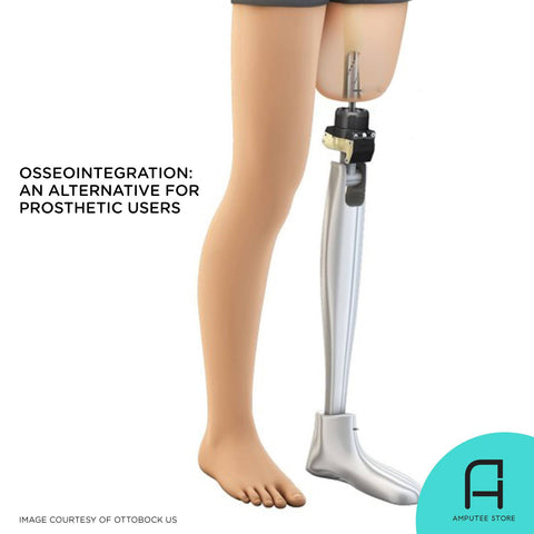 Osseointegration, a bone implant procedure, is deemed to be the future of prosthetics.