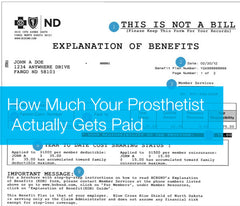 How much do Prosthetic facilities actually get paid.