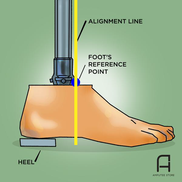 Prosthetic foot alignment line should fall through the reference point.