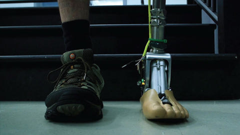 Prosthetic foot is capable of adjusting to terrain through microprocessors.