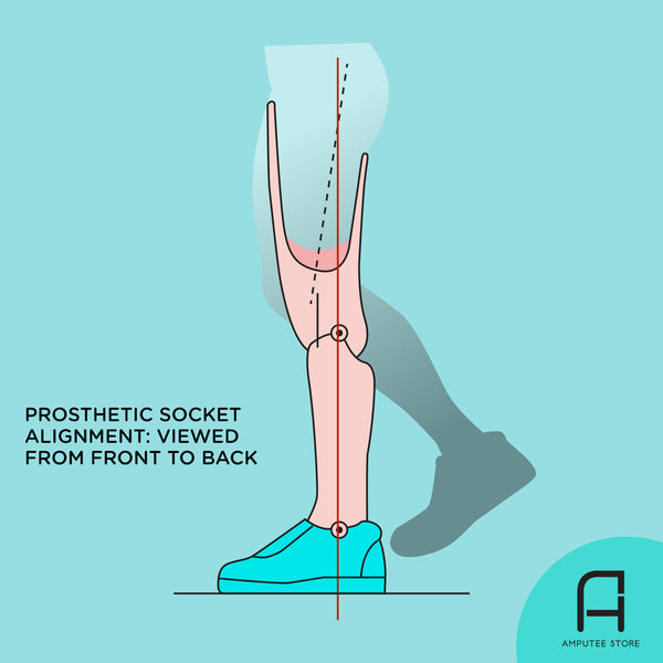 An illustration of a residual limb attached to a below-the-knee prosthetic leg to illustrate the ideal prosthetic socket alignment viewed from front to back.