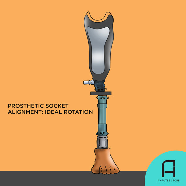 How to determine the ideal prosthetic socket alignment and rotation using your phone's measuring or photo editing app.