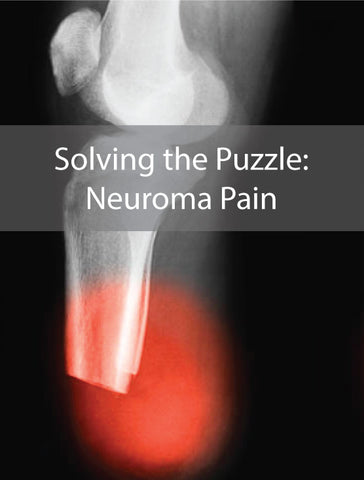 Neuroma pain can be very painful along your stump and prosthesis.