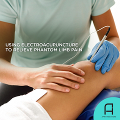 Electroacupuncture is a promising treatment for phantom limb pain.