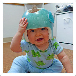 Carry your baby in a baby carrier for plagiocephaly prevention