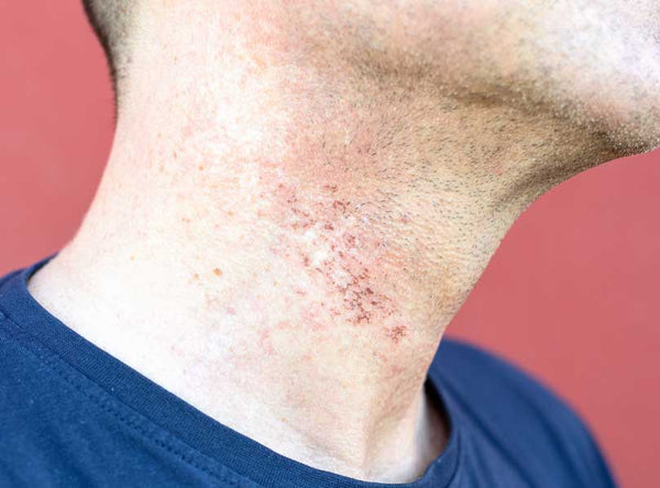 Neck Razor Burn Scars from Shaving