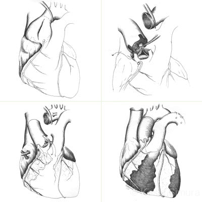 Heart Surgery: Science Illustration by Kasia Simura, created for University of Minnesota faculty