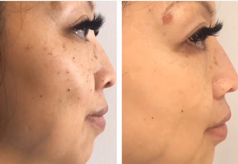 Case Study 001: Pigmentation & IPL | Gee Beauty