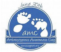 arthrogryposis awareness day is june 30th