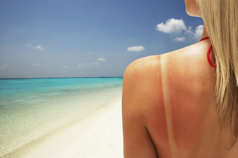 Summer is Here. But... Sunburn Remedies